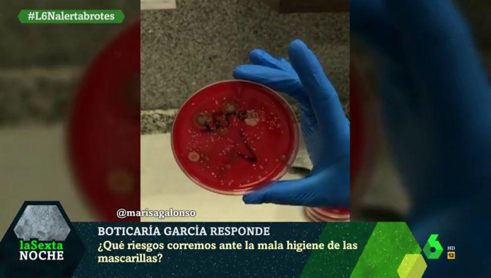 Estos son los riesgos que corremos ante la mala higiene de las mascarillas