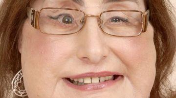 Connie Culp, la mujer que en 2008 recibió el primer trasplante facial