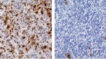 Identifican como algunos gliomas adquieren resistencia a la quimioterapia
