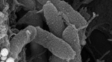 Descubren una estrategia terapeutica eficaz frente a bacterias resistentes