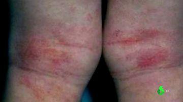 Imagen de una lesión en la piel provocada por el coronavirus