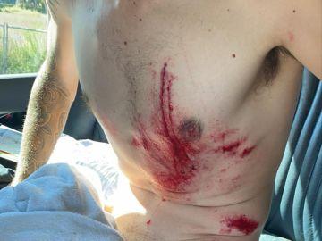 Así quedó el cuerpo de Ángel Madrazo tras su accidente
