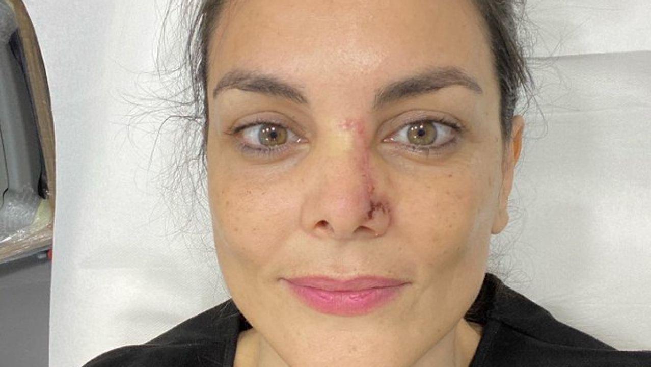 Mónica Carrillo muestra la cicatriz de su nariz tras recuperarse de un cáncer de piel