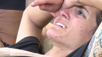 """AnaPi se lesiona la rodilla en medio de una expedición: """"¡Dios, qué dolor!"""""""