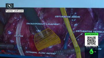 Un médico español logra combatir con cirugía un síndrome casi desconocido
