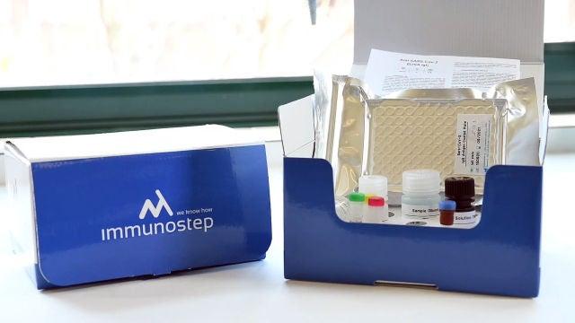 Nuevo test de anticuerpos con una fiabilidad de casi el 100