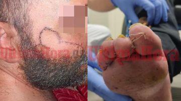 Imagen del joven torturado en Manacor
