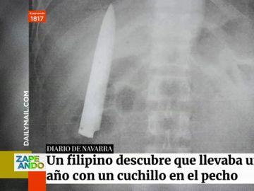 Un joven descubre con una radiografía que llevaba meses con un cuchillo en el pecho