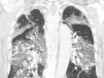 Imagen de los pulmones del paciente de Zuyderland