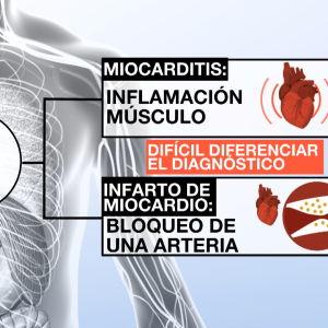 Diferencias entre una miocarditis y un infarto de miocardio