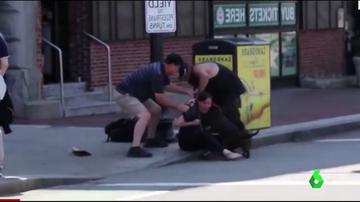 Ataque de un perro a un ser humano