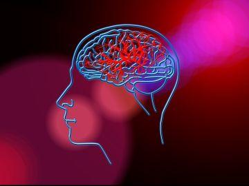 La Inteligencia Artificial permite calcular el riesgo individual de un ictus