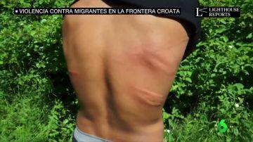 Las impactantes imágenes de brutales palizas a migrantes bosnios en la frontera croata