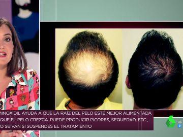 Sí, existe: Boticaria García explica cuál es el tratamiento más efectivo para evitar la caída del pelo